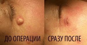До-После2-300x157 Удаление новообразований кожи